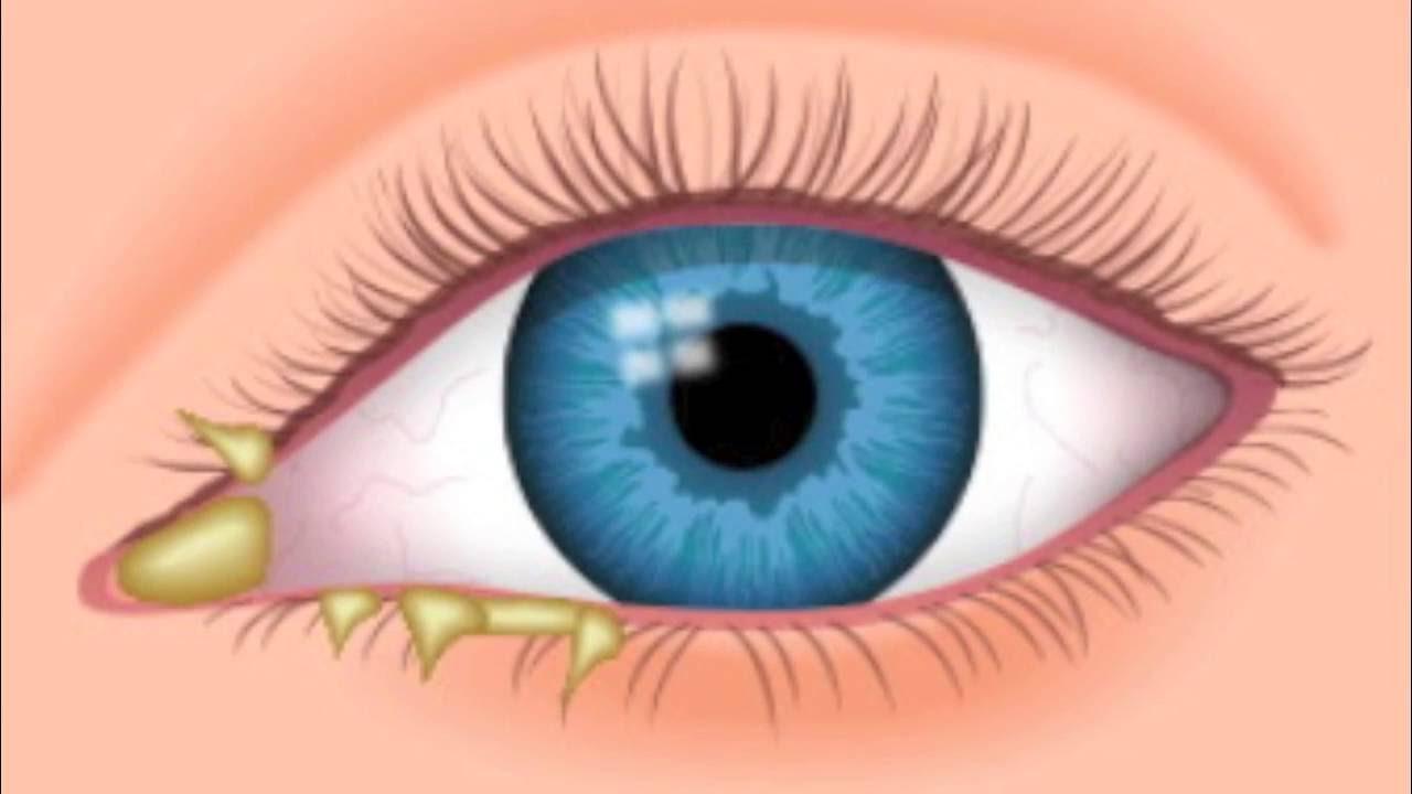 العيون الزرقاء في المنام وتفسيرها