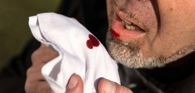 تفسير حلم رؤية خروج الدم من الأسنان