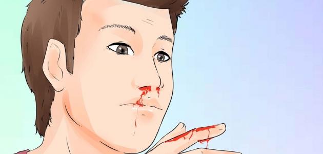 رؤية نزول الدم من الأنف في المنام و تفسيره