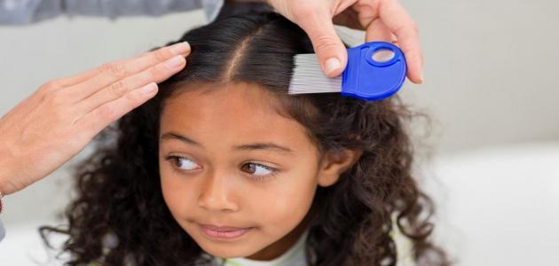 أسباب وجود قمل الشعر مقاوم للعلاج