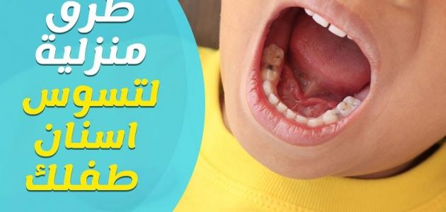 تسوس الأسنان بسبب الرضاعة وكيف تمنع هذا التسوس