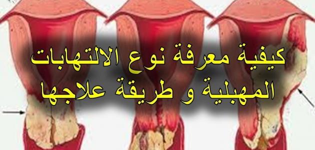 تعرف على أسباب و أعراض التهاب المهبل البكتيري