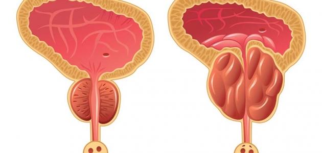 تعرف على الآثار الجانبية لعلاج سرطان البروستاتا