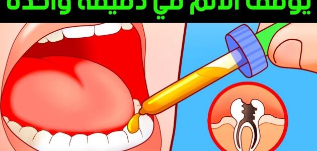 تعرف على طريقة علاج عصب الأسنان في المنزل