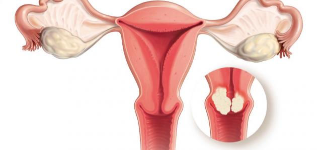 تعرف على كيفية تشوه الأعضاء التناسلية للأنثي