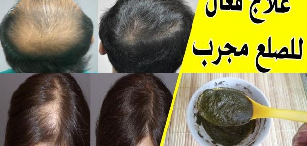 كيف يعالج الرجال تساقط الشعر نهائياً
