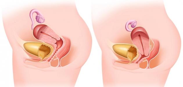 كيف يمكن إصلاح جدار الرحم بعد هبوطه