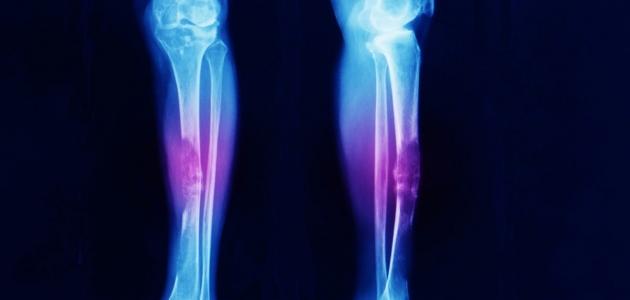مرض الساركوما العظيمة الذي يصيب العظام
