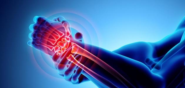 ماذا تعرف عن التهاب المفاصل الروماتويدي
