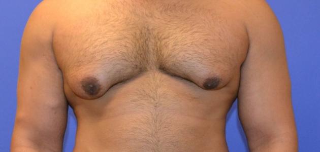 هل يمكن تشخيص وعلاج تضخم الثدي عند الرجال