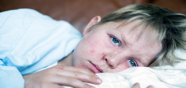 أسباب وأعراض الحصبة ومضاعفاتها عند الأطفال