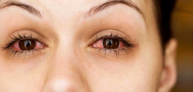 الأمراض التي تتعرض لها العين وطرق الحفاظ عليها من الإلتهابات