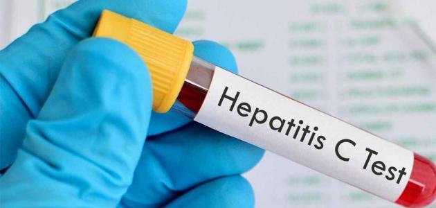تعرف على أسباب وأعراض الإصابة بمرض الفيروس الكبدي c والوقاية منه