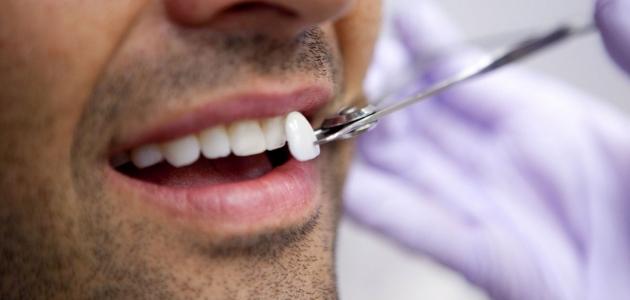 تعرف على أهمية تركيب اللومينير للأسنان وما هي مميزاته