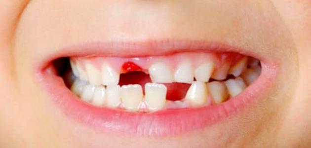 تعرف على أهمية وجود الأسنان اللبنية عند الأطفال