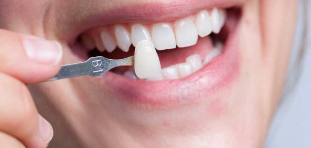 تعرف على أهمية ومميزات تركيب الفينير للأسنان