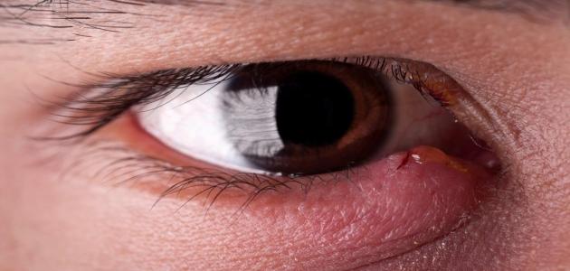 تعرف على جفاف العين أعراضه وأسبابه والوقاية منه