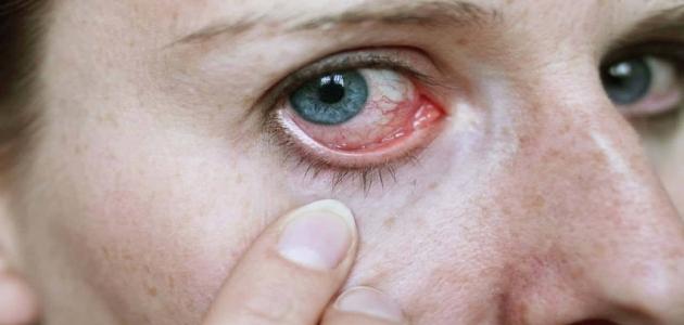 تعرف على طرق الوقاية من حساسية العين