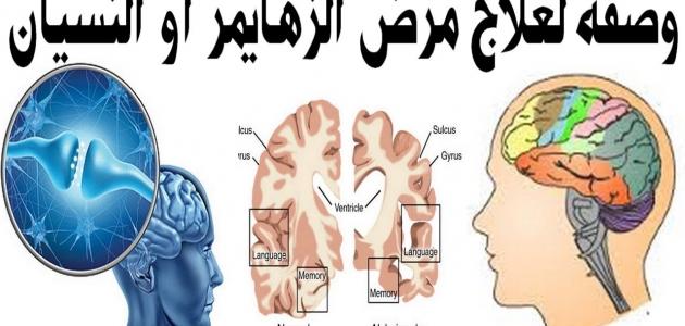 تعرف على مرض الزهايمر أعراضه والتغيرات التي تطرأ على المريض