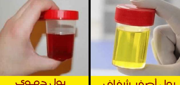 ماهي المؤشرات التي تظهر بالبول وتهدد خطر لصحة الانسان