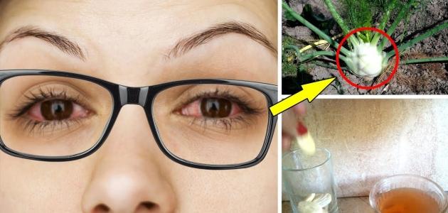 هل أنت في حاجة نظارات طبية في حالة تشوش الرؤية