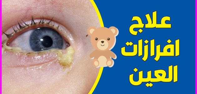أسباب انسداد القناة الدمعية وتكون إفرازات العين عند الأطفال