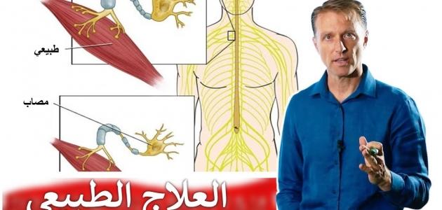 تعرف على أسباب وأعراض مرض التصلب الجانبي الضموري
