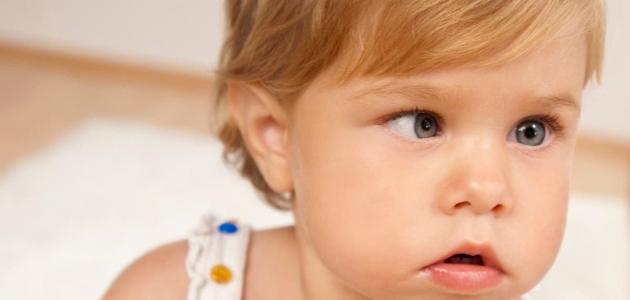 تعرف على أسباب وطرق الوقاية والعلاج من العين الكسولة عند الأطفال