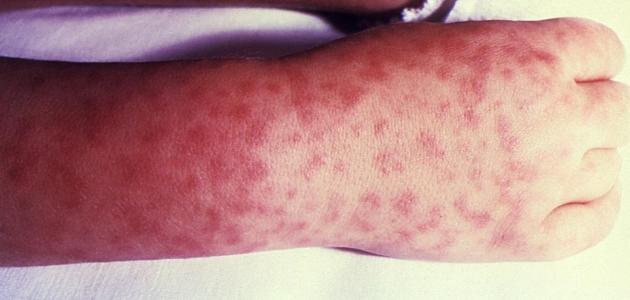 تعرف على أعراض مرض كاواساكي وأسبابه