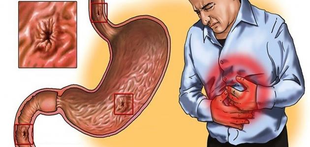 خزل المعدة أعراضه وأسباب الإصابة به