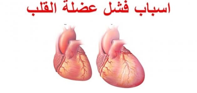 ما هي أعراض فشل القلب الاحتقاني وأسبابه وكيف يتم تشخيصه وعلاجه
