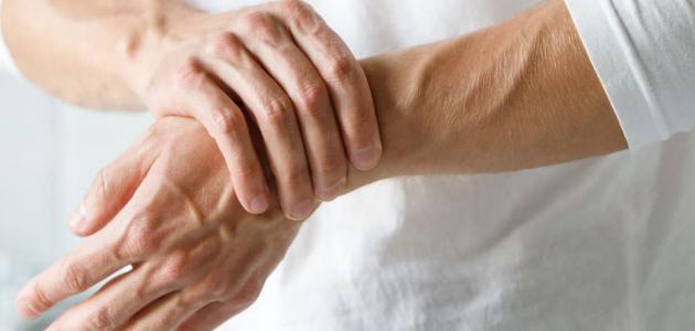 متلازمة رايتر في الطب الحديث(أسبابها- أعراضها – الوقاية منها)