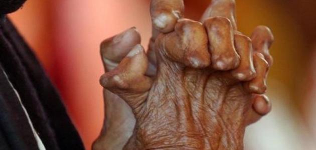 مرض الجذام يسبب تشوه بالأعصاب وتقرحات جلدية