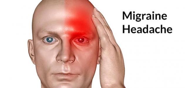 أسباب الصداع النصفي وطرق تشخيصه وعلاجه