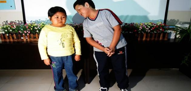 إصابة الأطفال بالتقزم أحد عوامل الإصابة هي البيئة