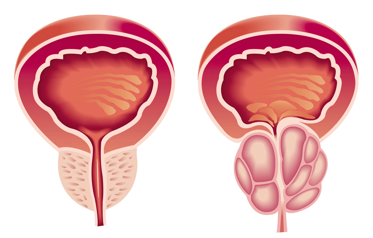سرطان المسالك البولية مرض بدون أعراض