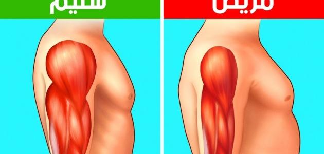 عضلات الجسم ضعيفةسببا في عدم حمل الطفل والمراهق من ذراعيه