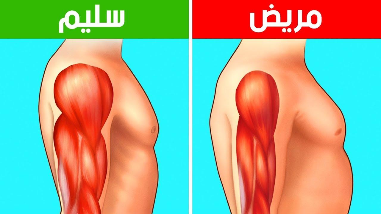 عضلات الجسم الضعيفة
