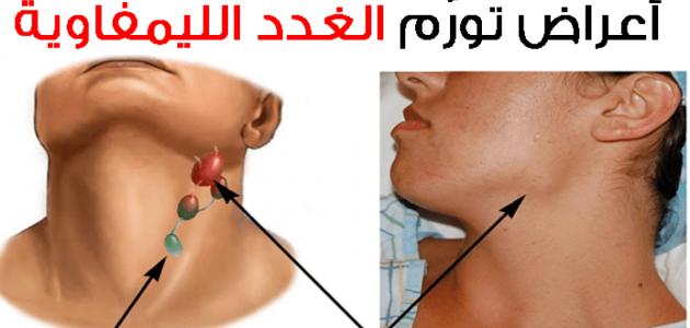 ما فائدة الغدد اللمفاوية وكيف يمكن علاج تورمها