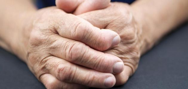 مرض الروماتويد وأسباب الإصابة به