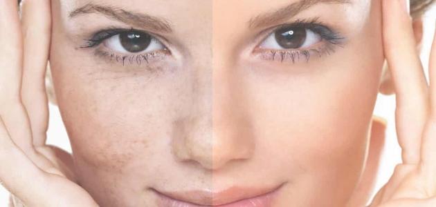 ما هي تصبغات الجلد والبطن ؟